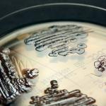 Multi-drug resistant Enterobacteriaceae. Image: IMMIH, Köln/Hamprecht
