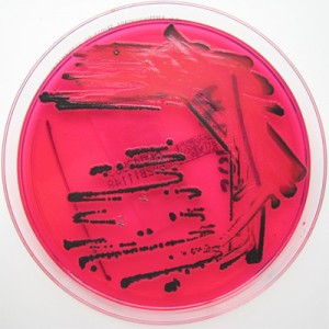 By Nathan Reading from Halesowen, UK  (Salmonella species on X.L.D. agar.)  via Wikimedia Commons
