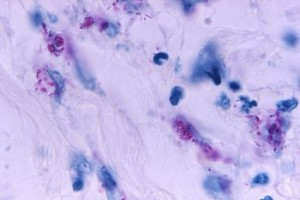 Mycobacterial skin infection.   CDC/ Dr. Roger Feldman